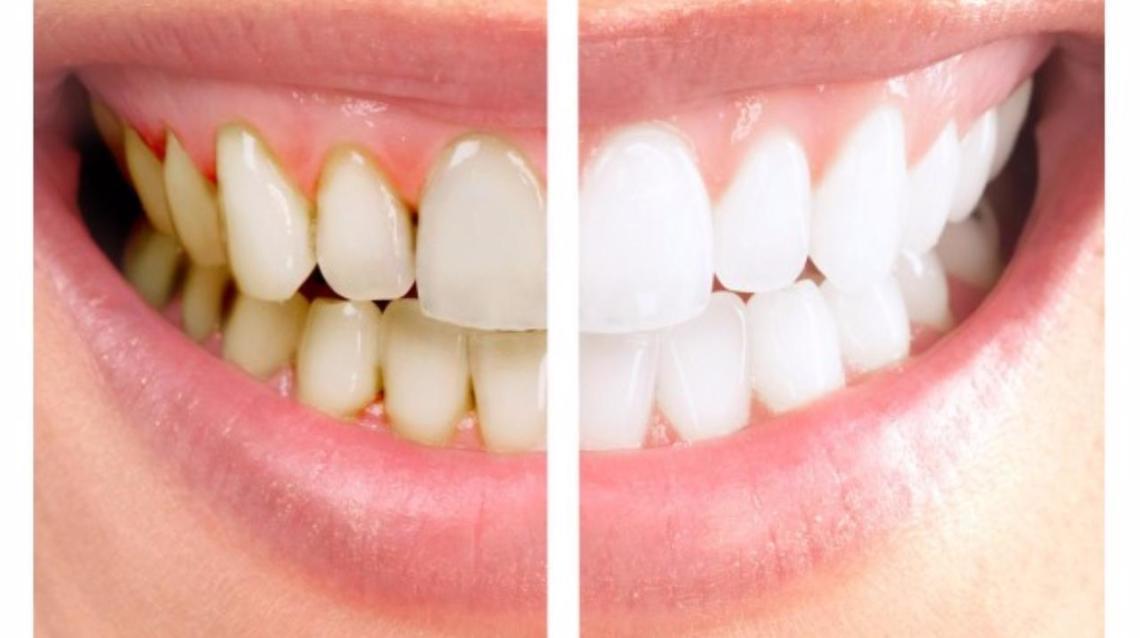 جرم گیری دندان