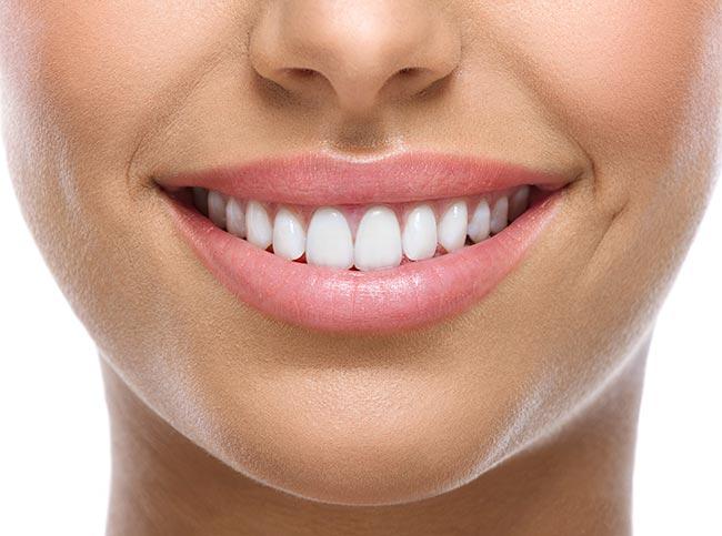 سفید شدن دندان با ذغال