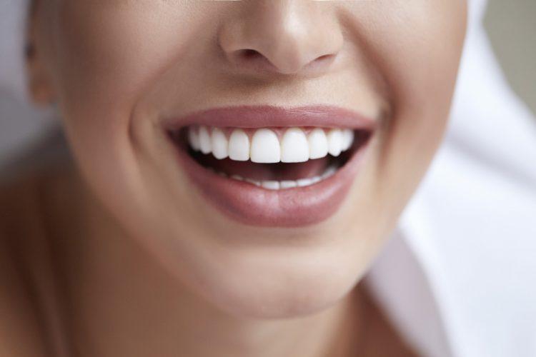 دندان های کج