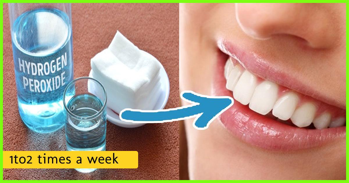 سفید کردن دندان با هیدروژن پراکسید