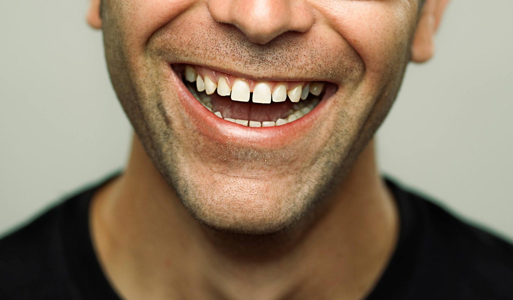دیاستم یا فاصله بین دندان