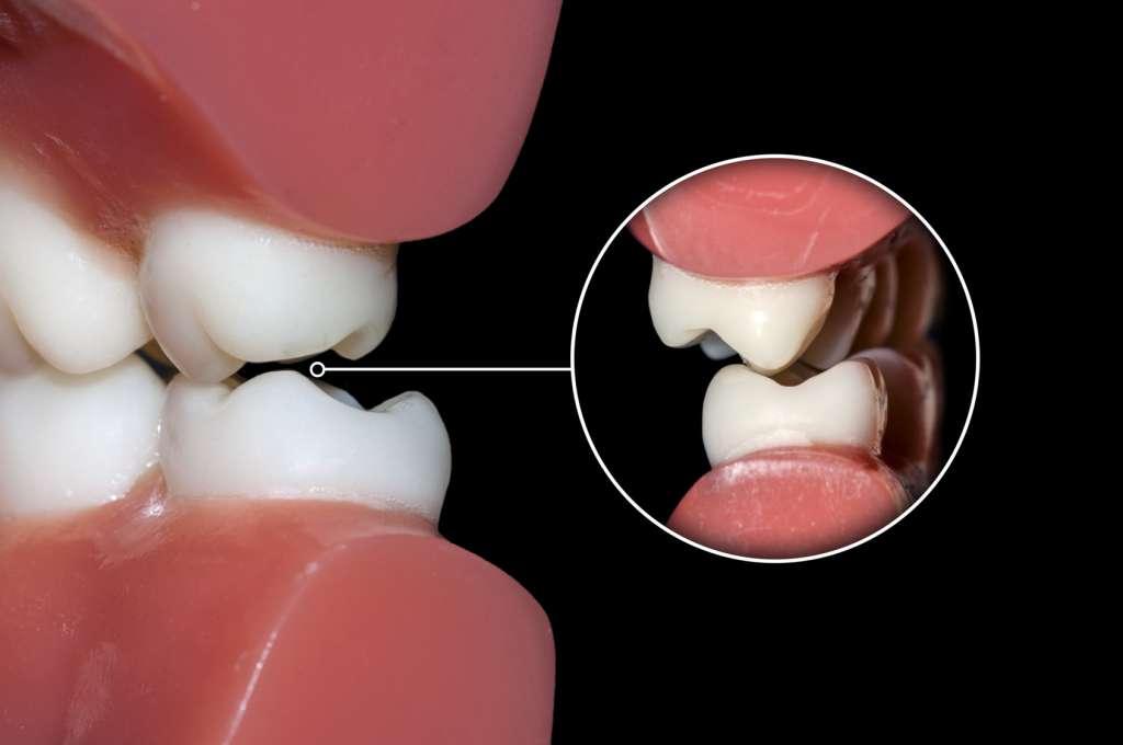 دندان قروچه یا بروکسیسم
