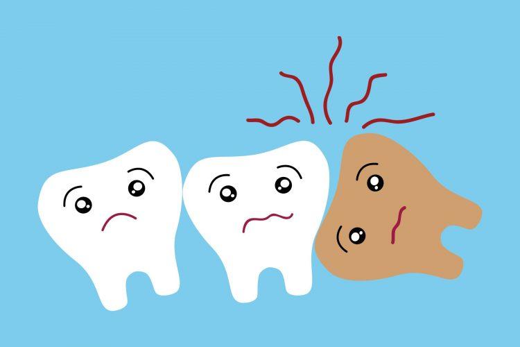 دندان های نهفته ، علائم و درمان
