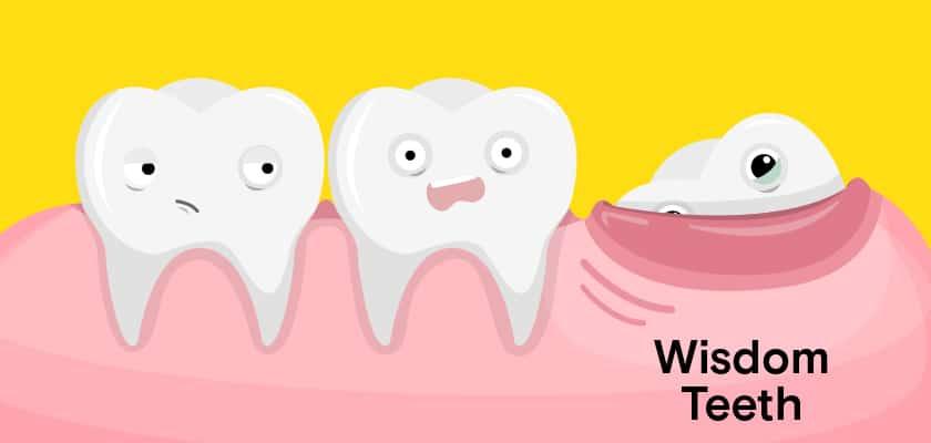 غذاهای مفید بعد از کشیدن دندان عقل
