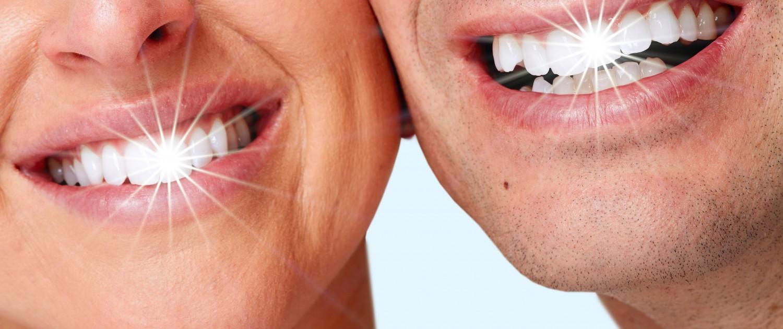 پولیش دندان