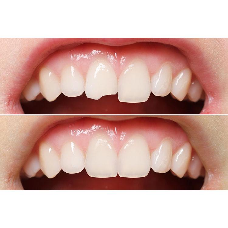 آسیب دندان