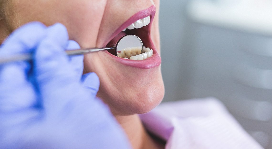 درد ناگهانی همه دندان ها