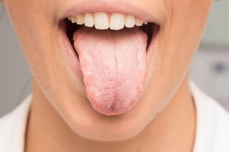 خشکی دهان یا زروستومیا