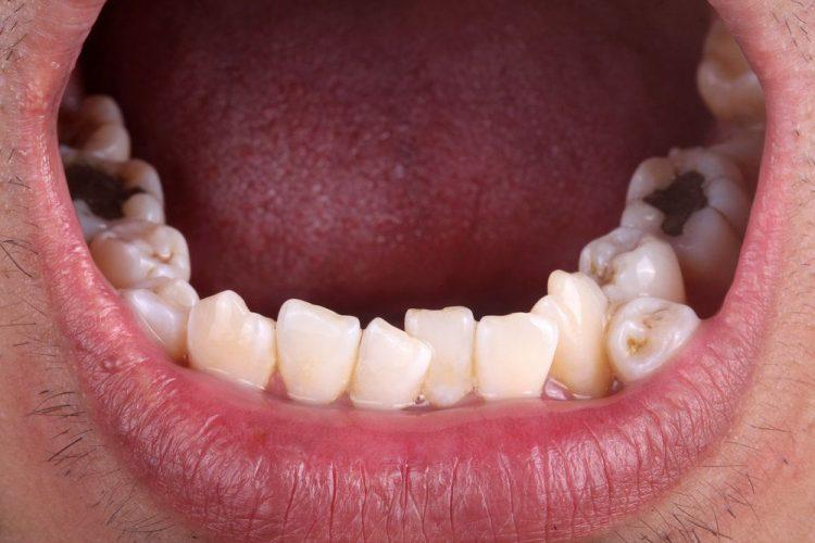 هایپردونتیا - دندان های اضافی