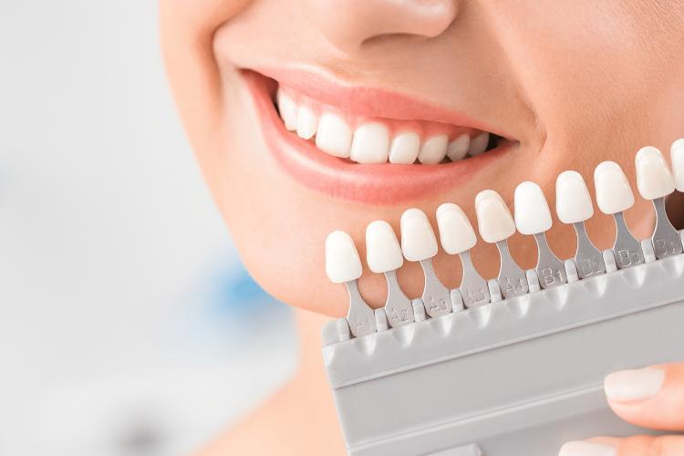 بهترین ایمپلنت های دندان